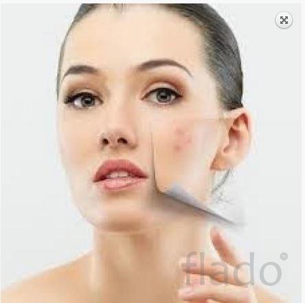 Купить Ac net для жирной кожи