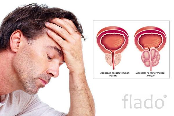 Массаж-профилактика аденомы предстательной железы