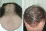 Клиника Пересадки Волос (Центра Здоровья Волос)